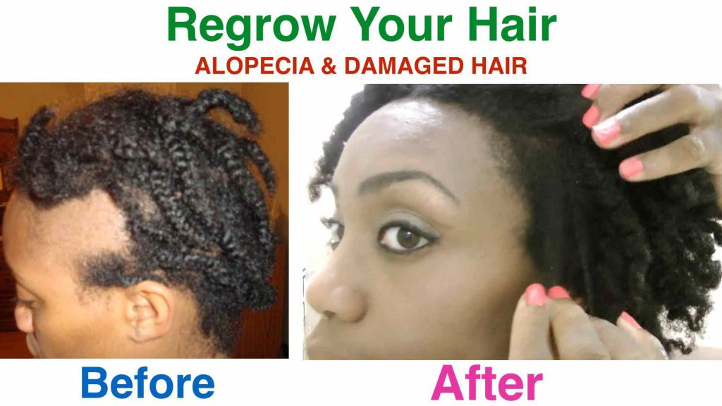 How To Regrow Your Hair Alopecia  Damaged Hair - Onion juice for hair regrowth review