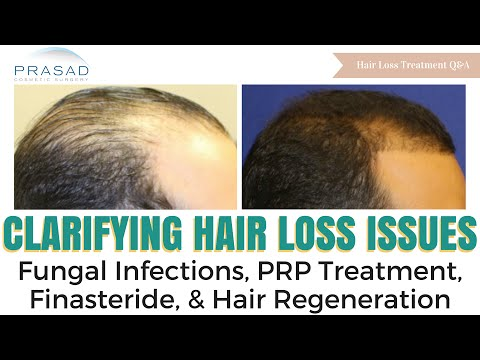 hair loss treatment essay Options for treatment or address total hair loss manage alopecia areata at the 33rd annual national alopecia areata foundation international.