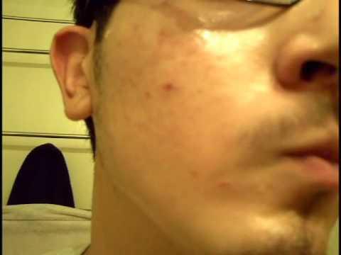 vitamin for acne