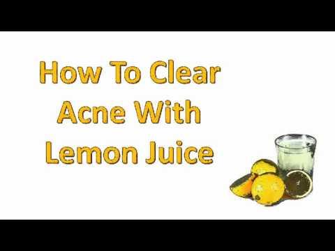 lemon juice acne remedies