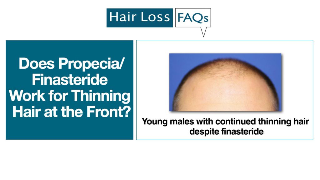 Does Propecia Finasteride Work For Thinning Hair At The