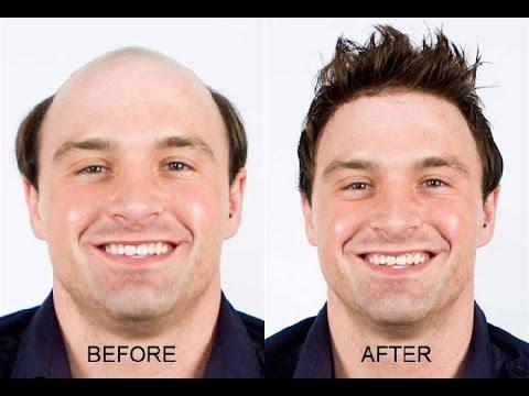 Stop Hair Loss Naturally Vitamins