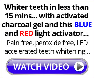 Natural Teeth Whitening System