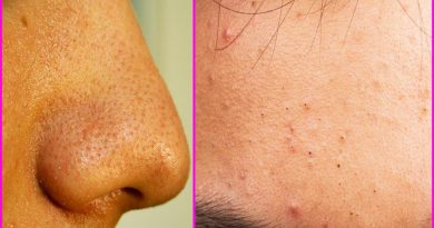 5 Effective Natural Home Remedies To Get Rid Of Nose Blackheads