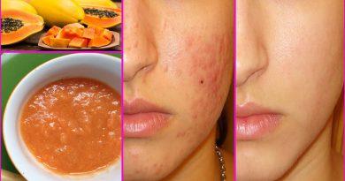 5 Natural Ways To Use Papaya For Acne Treatment