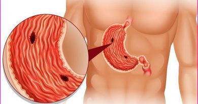 6 Ways To Relieve Stomach Ulcers At Home Natural Remedies