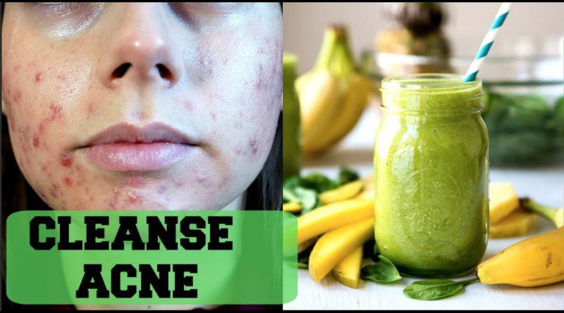 CLEAR ACNE WITH THIS GREEN SMOOTHIE|| Get rid of acne through detox/detoxifying