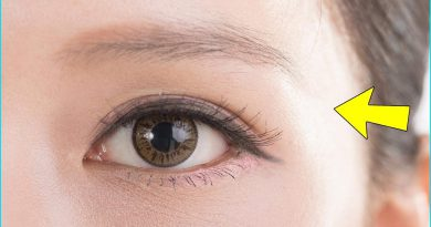 Here Is What Causes Hair Fall On Eyebrows And Eyelashes