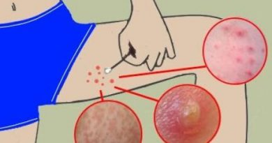 How To Get Rid Of Boils On Inner Thighs And Buttocks