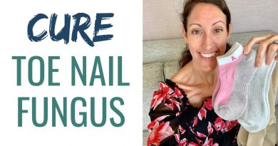 How to Treat & Cure Toe Nail Fungus Infection Naturally & FAST - Without Nail Removal!