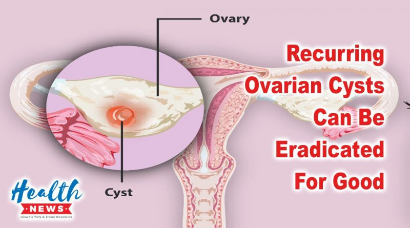 Recurring Ovarian Cysts Can Be Eradicated For Good