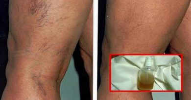 Successfully Treat Capillaries And Veins With These 4 Herbal Recipes