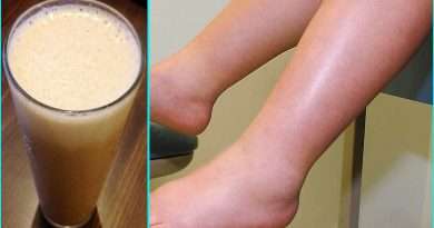 The Natural Home Remedies To Get Rid Of Swollen Legs