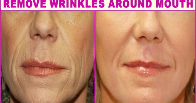 Top 5 Natural Home Remedies For Wrinkles Around The Mouth