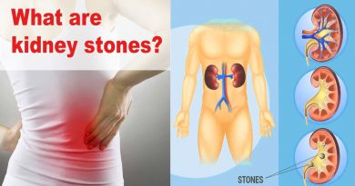 What? Another Kidney Stone Attack? Need Relief From Your Kidney Stone Pain?
