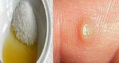 With This Mixture For 10 Days Only, You Can Remove The Toughest Wart!