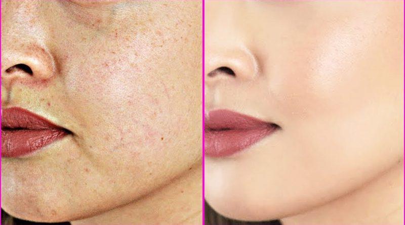 6 Natural Ways To Treat Dark Spots Known As Hyperpigmentation