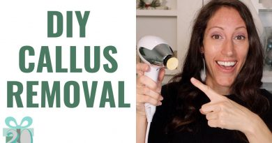 How toTreat Calloused Rough Heels Naturally | FAST Callus Removal on Feet