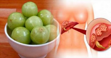 Benefits of Amla |  It Is The Most Powerful Antioxidant, Has 20 Times More Vitamin C Than Oranges