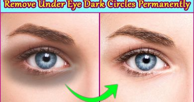 Remove Under Eye Dark Circles Permanently 5 Easy Natural Home Remedies