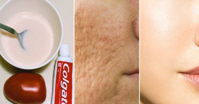 Tomato With Toothpaste Face Mask Close Large Open Pores Remove Dark Spots And Pigmentation