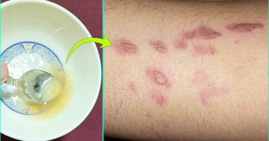 How To Remove Burn Marks And Scars From Skin | Best Home Remedy For Burn Marks