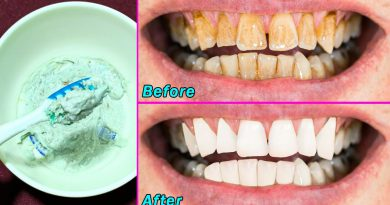 Magical Teeth Whitening Remedy, Get White And Shiny Teeth Like Pearls In Just 3 Minutes At Home