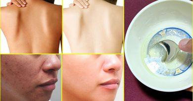 Vitamin E And Aloe Vera Skin Whitening Mask, Get Fair Spotless Glowing Skin Naturally At Home