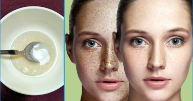 How To Get Rid Of Freckles And Dark Spots On The Face, Freckles Removal Home Remedy