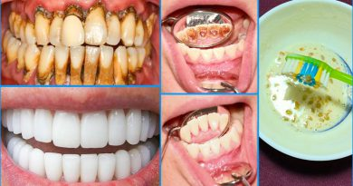 In Just 5 Minutes, White Teeth Whiten And Shiny Like Pearls, Magic Teeth Whitening Remedy