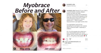 Tool to Stop Mouth Breathing Actually Changed my Kids' Face: MYOBRACE review