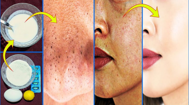Get Rid Of Blackheads, Dark Spots, Close Large Open Pores, Natural Remedy 100% Results