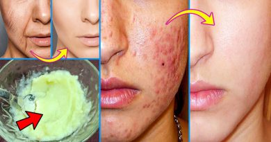 Homemade Secret Face Pack - Remove Acne And Acne Scars - Tightening Skin You Look Younger