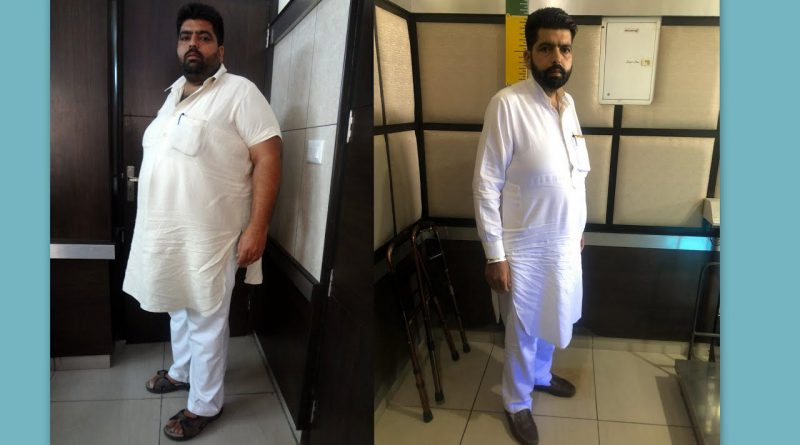 My weight loss journey from 157 Kg to 95 Kg|Lost 62 Kilos!Here's how I did it....