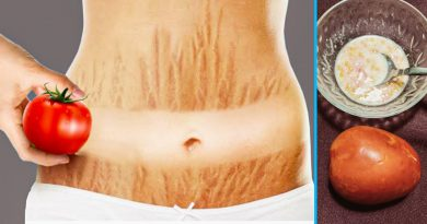Get Rid Of Stretch Marks Fast With Tomato And Toothpaste, Natural Treatment For Stretch Marks