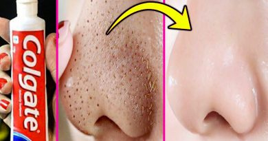 How To Get Rid Of Blackheads On Nose With Toothpaste / Remove Blackheads At Home Instantly