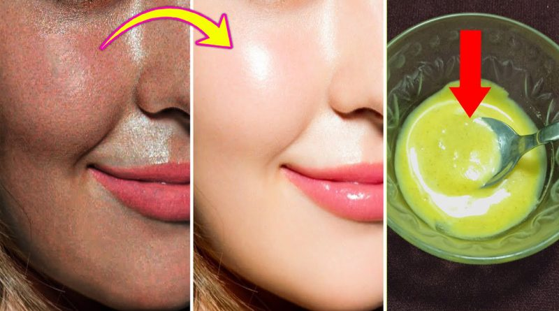 Amazing Skin Whitening Face Mask - Get Fairer And Glowing Skin Only 20 Minutes