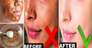 Cinnamon And Honey Face Pack, Get Clear Glowing Skin Naturally   Skin Whitening Pack