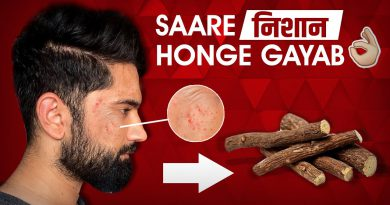 How To Remove Acne Marks & Pigmentation | Remove Blemishes & Discolouration | Natural Treatment