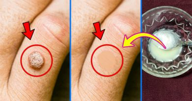 Get Rid Of Warts Naturally Fast At Home, Warts Removal Using Apple Cider Vinegar