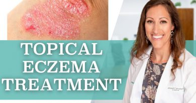 How to Treat Eczema Topically at Home
